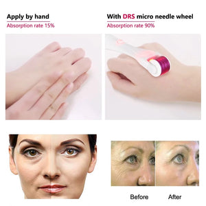 Derma Roller - New Anti-age Needling Technology