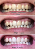 Magical Teeth Whitening Powder