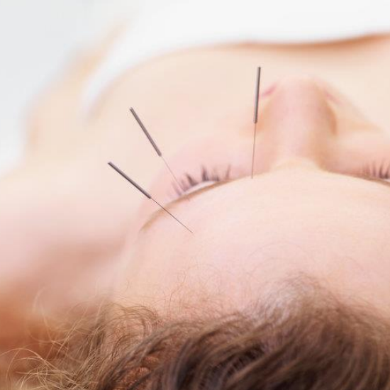 I Tried Facial Acupuncture- and it was Amazing!