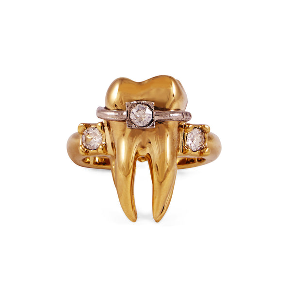 Gold Tooth Ring - Akollekt - 1