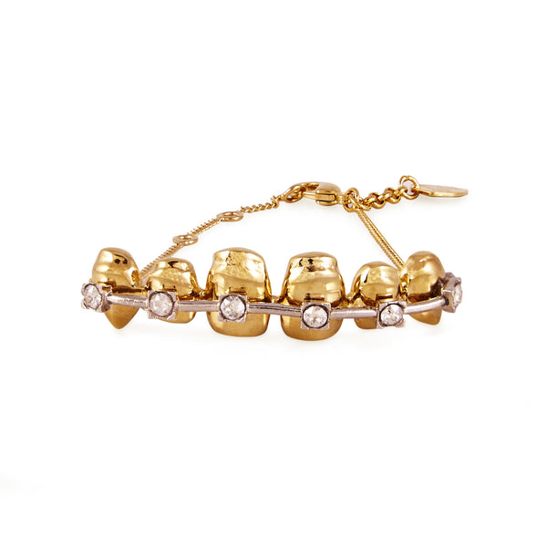 Gold Teeth Bracelet - Akollekt - 1