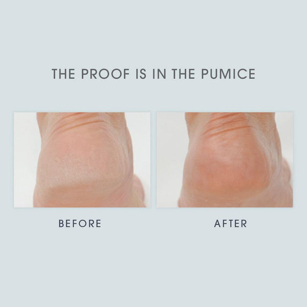 Lavender & Eucalyptus Foot Crème before and after images of a person's heel. The before image looks dry and rough, the after image looks smooth and soft.
