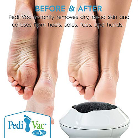 Pedi Vac by Ped Egg - Callus Remover for Feet with Built-in Vacuum Removes Dead Skin from Feet with 2000 RPMs - Electric Callus Remover Sucks Up Shavings for Mess-Free Exfoliation