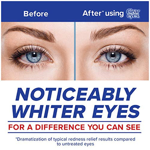 Clear Eyes Eye Drops, Maximum Redness Relief, 1 oz, Pack of 3