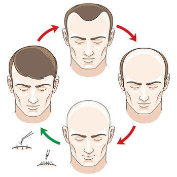 Hair transplanation process