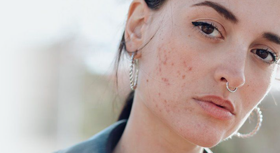How To Get Rid Of Acne and Blemishes!
