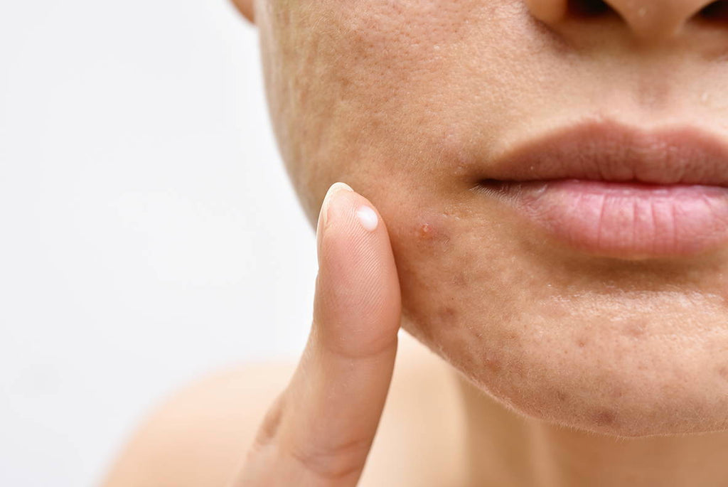 WHY ACNE IS AFFECTING YOU AND HOW TO CLEAR IT