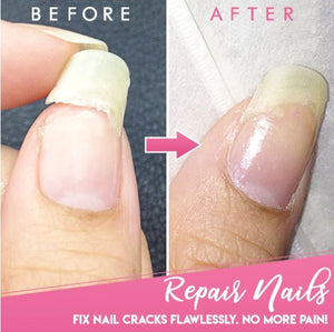 Nagel Repareer Gel
