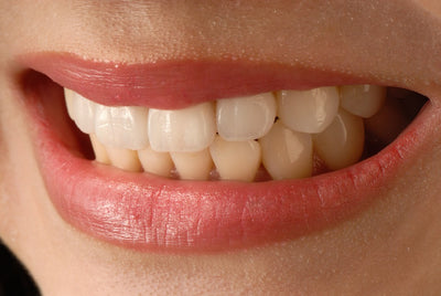 Will Teeth Whitening Work On Veneers?