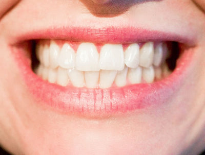 Will Teeth Whitening Remove Stains