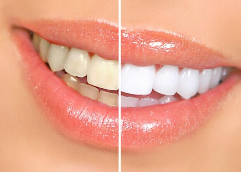 Teeth Whitening Pen White Tooth Cleaning Bleaching