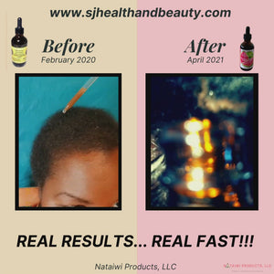 S.H.O. Super Hair Oil w/ MSM