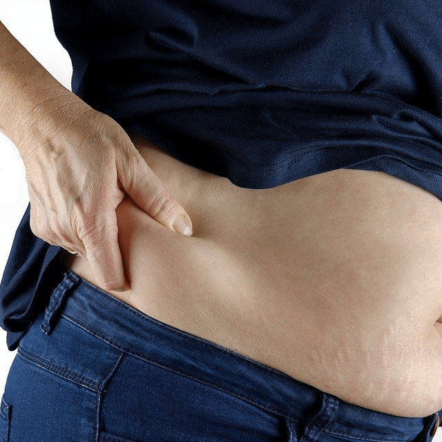 Overweight Weightloss Stomach Fat