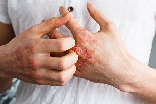 How to relieve itching during eczema crisis ?