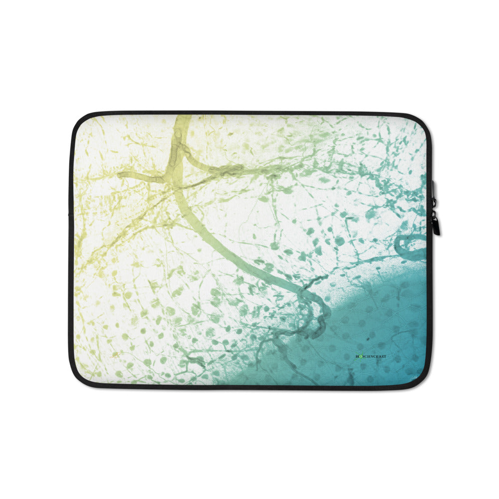 Laptop Sleeve,