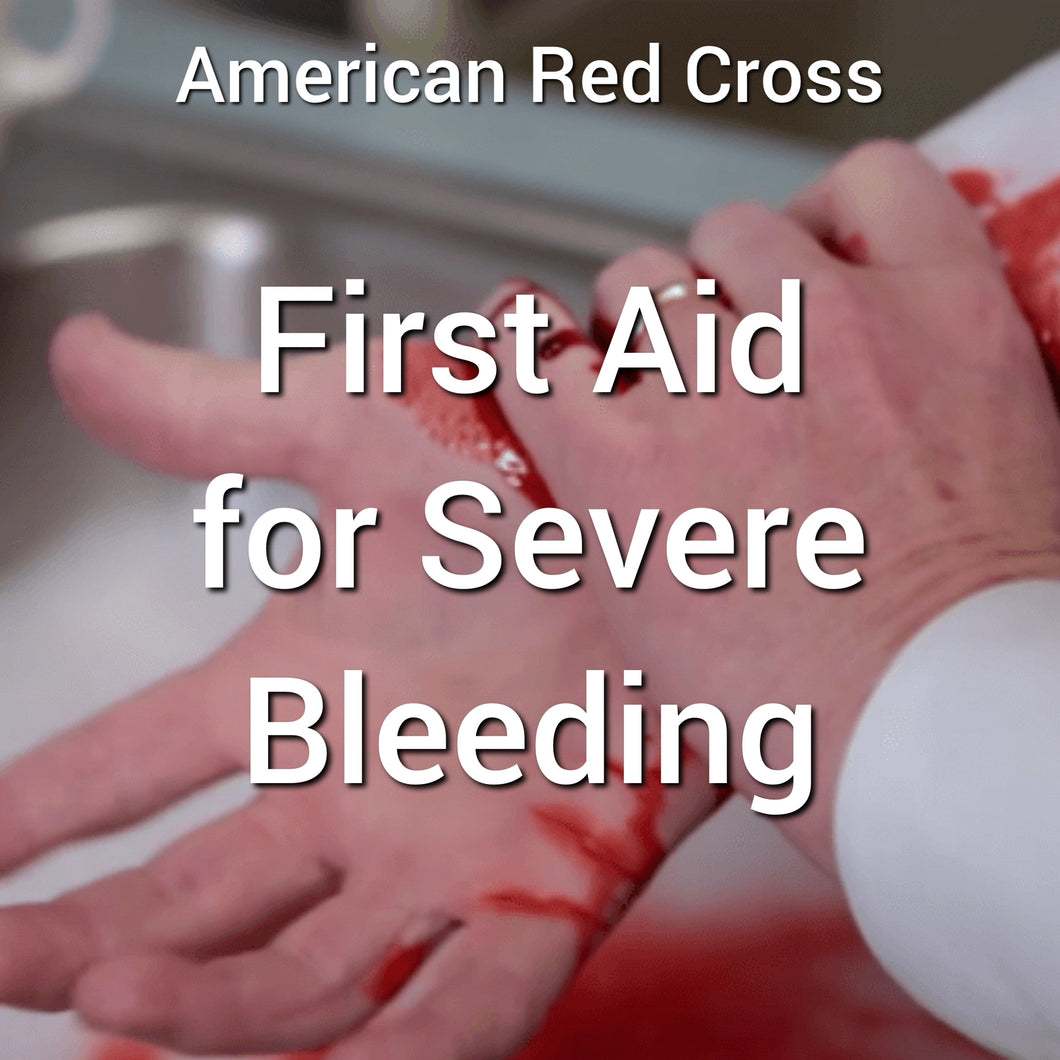 First Aid for Severe Bleeding Online