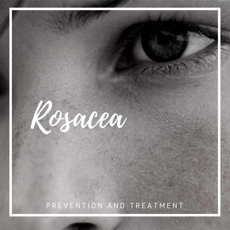 Rosacea Prevention and Treatment || Skin Care Geelong