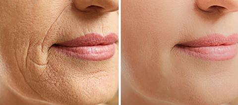 Before and After Skin Rejuvenation Results And how it works