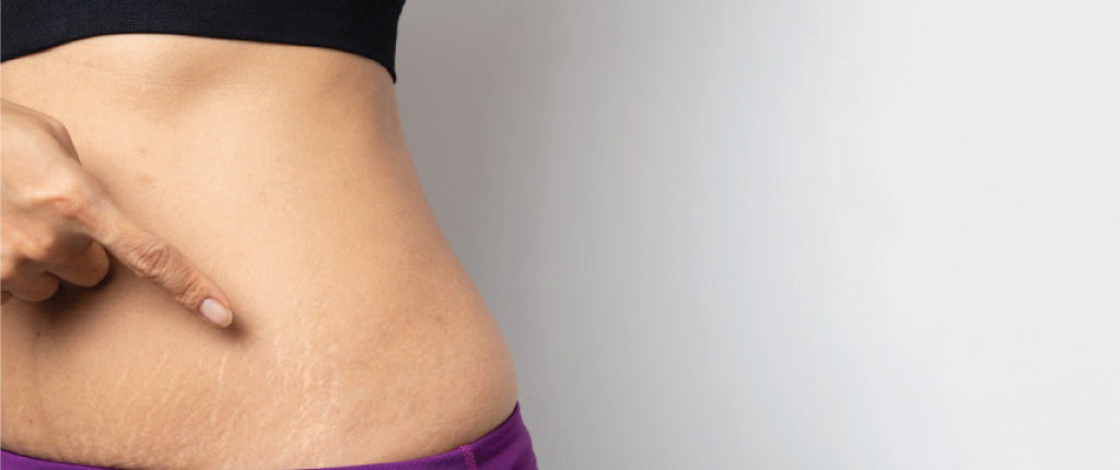 How to get rid of stretch marks with natural stretch mark oil Image main