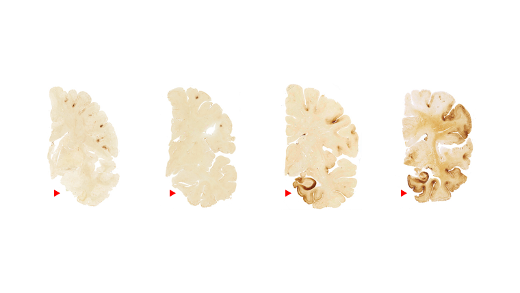 Images of the brain, with increasing dark spots, showing the spread of tau and possibility of CTE