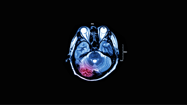 A scan of a traumatic brain injury