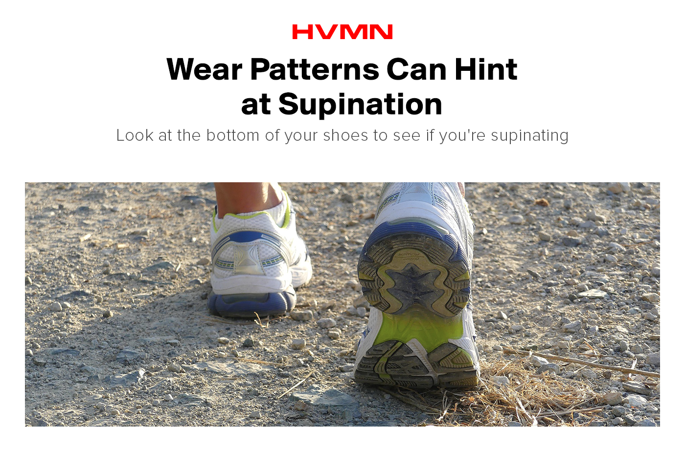 Shoe wear patterns can be used to diagnose supination.