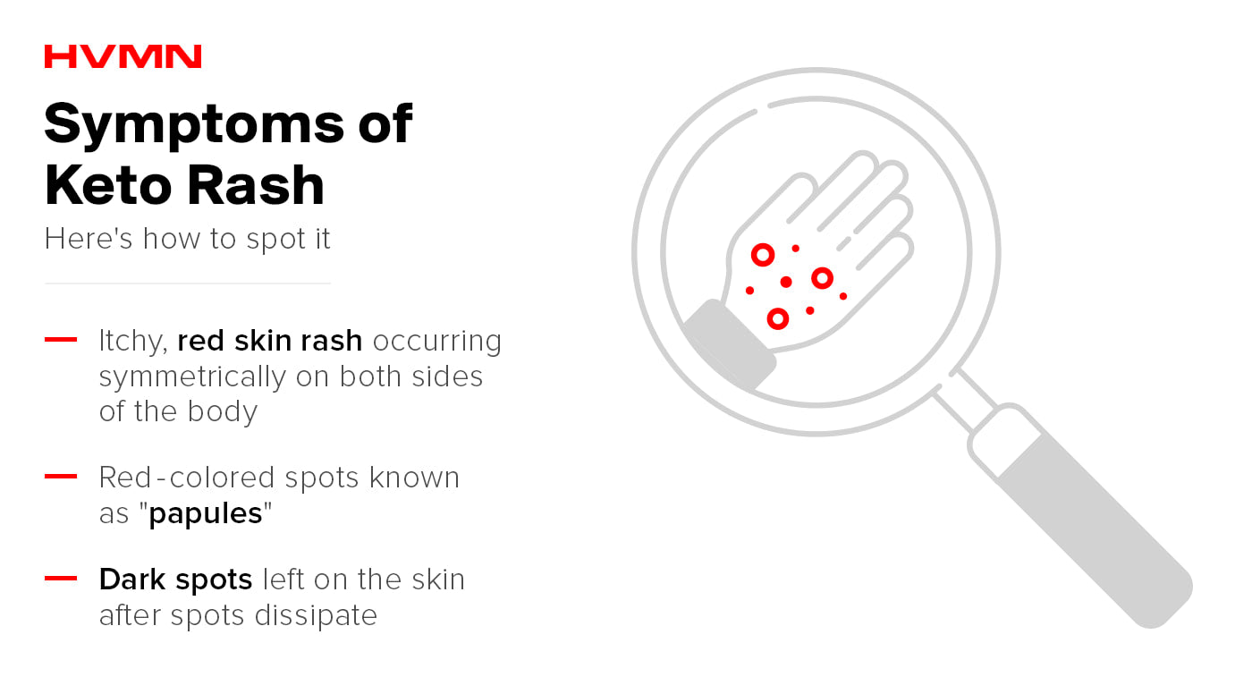 This image describes symptoms of keto rash including itchy red skin rashes, red-colored spots, and dark spots left on the skin after spots dissipate.
