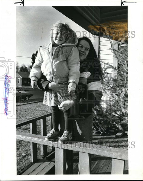 1986 Press Photo Burn Victim Zabrina McCracken With Mother Beth - ora68555 - Historic Images