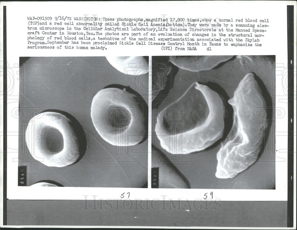 1972 Press Photo magnified photo red blood cell Sickle - Historic Images