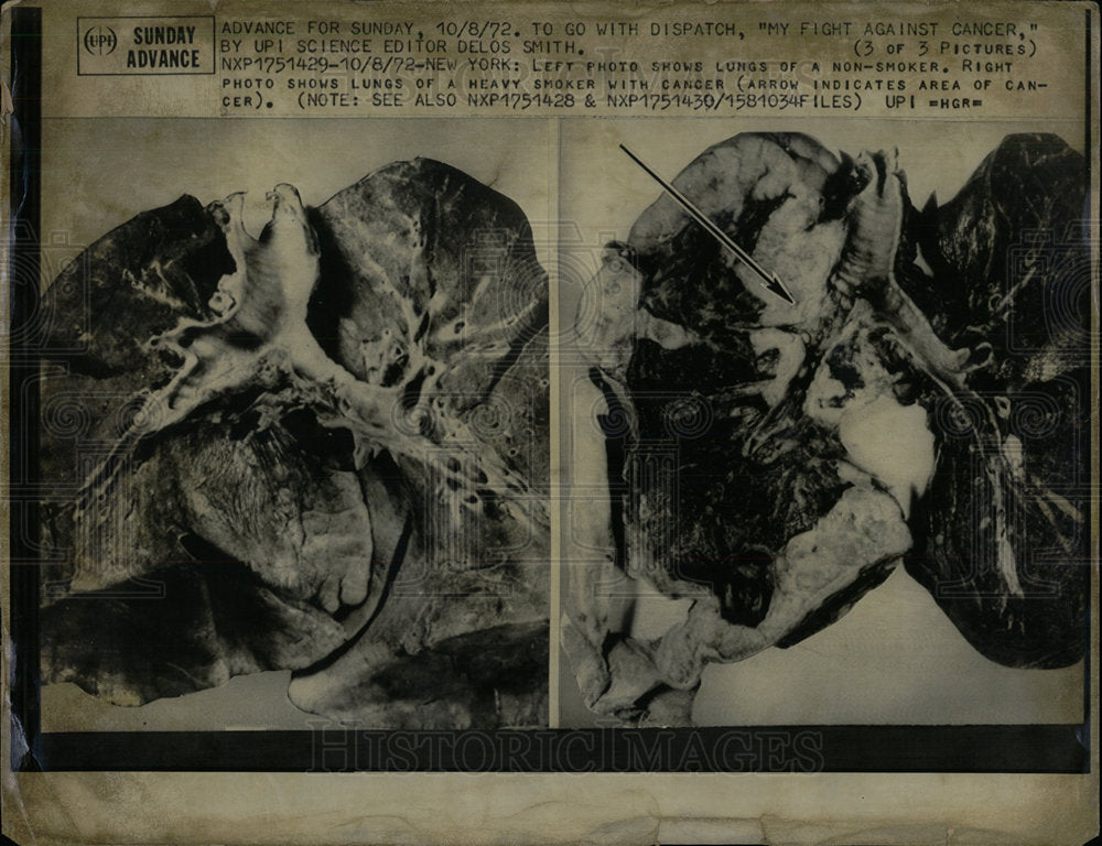 1972 Press Photo Lungs of Non-Smoker & Smoker. - Historic Images
