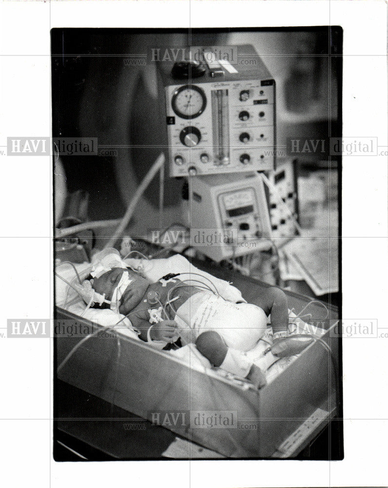 1986 Press Photo Infant Mortality,deaths,causes,complex - Historic Images