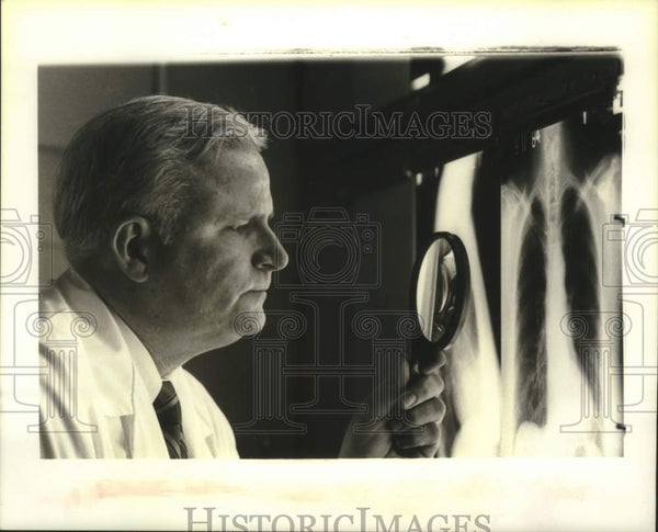 1984 Press Photo Arthur J. Wendte reviews a chest radiograph - tua13705 - Historic Images