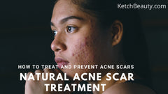 Natural acne scar treatment