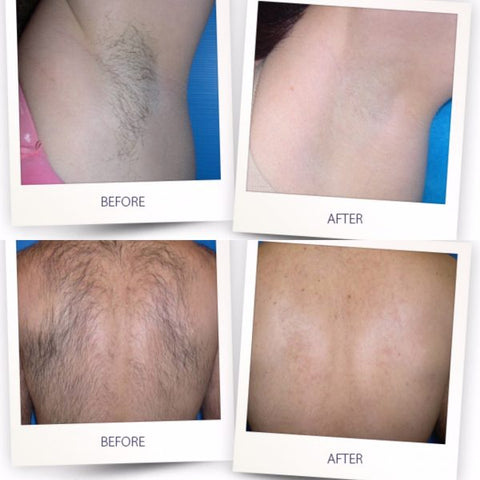benefits of IPL hair removal
