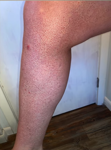 Victoria Rose pre at home laser hair removal