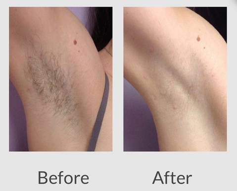 at home laser hair removal results