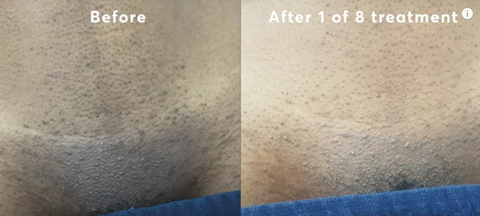 my first Brazilian laser hair removal
