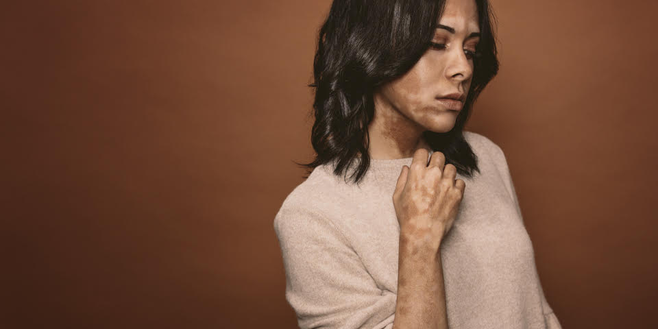 The vitiligo thyroid connection