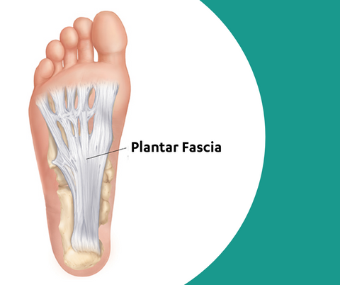 Plantar Fasciitis can become so painful