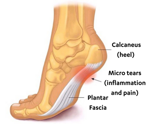 Plantar Fasciitis Extremely Common Condition
