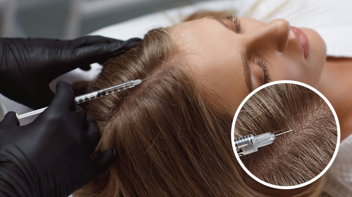 professionals methods  for treatment for dry scalp