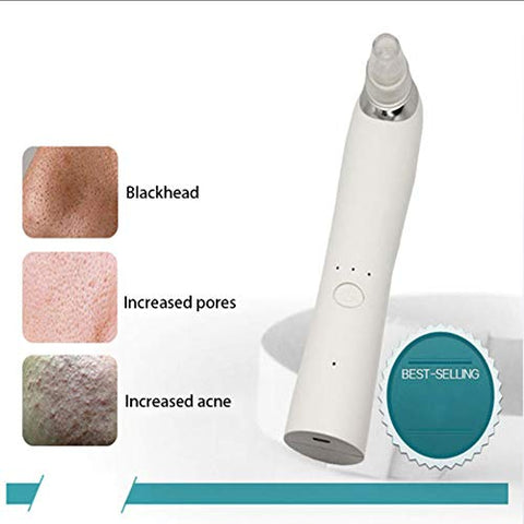 Electric Blackhead Meter to Remove Blackhead Facial Cleaning Instrument Blackhead Instrument Blackhead