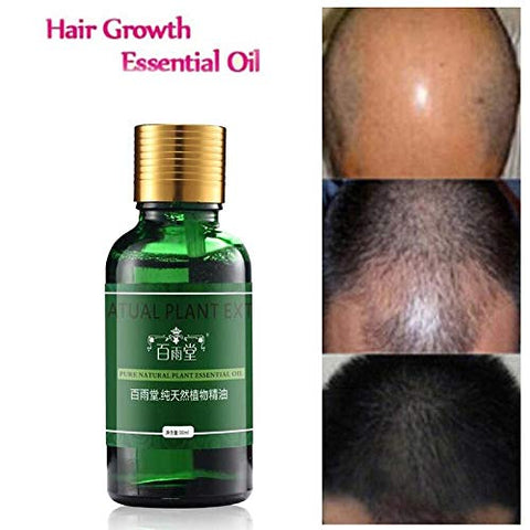 SAUJNN Hair Care Hair Growth Essential Oils Essence Authentic 100% Hair Loss Liquid Health Care Beauty Dense Serum Useful