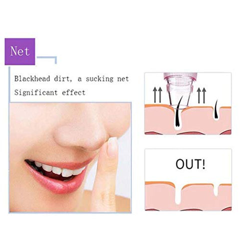 HEITOUYIW Electric Blackhead Instrument with High-Definition Display Can Replace 6 Kinds of Tips USB Charging Exfoliating Fade Fine Lines Beauty Equipment