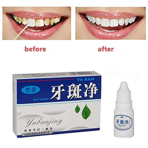 Vessos Instant Teeth Whitener Remover Dental Plaque Stains Bleaching Smoker Mouth 10ml