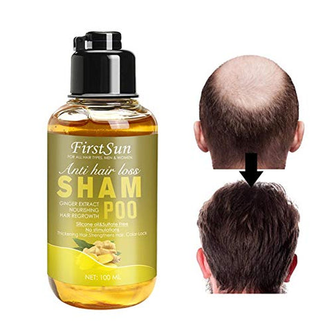Ofanyia Natural Ginger Hair Regrowth Shampoo Anti Hair Loss Hair Thickening Hair Growth Ginger Shampoo for Women And Men