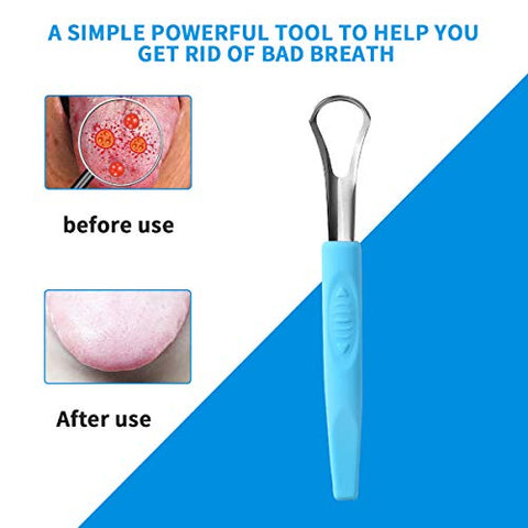 Tongue scraper, Tongue cleaner,LWTER safety & health design, soft and comfortable rubber handle, 100% BPA free, stainless steel head, Cure Bad Breath (Medical Grade)