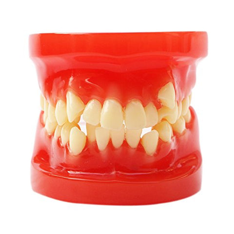 28 Teeth Orthodontic Model Dental Orthodontic Dental Training Model Oral Model Medical Anatomy Model Medical Education Pathological Model