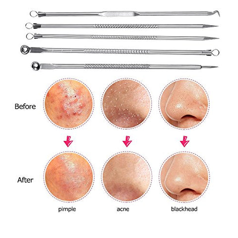 Blackhead Remover Tools Kit, Pimple Comedone Extractor Acne Removal 5pcs Stainless Acne Removal Tools Set