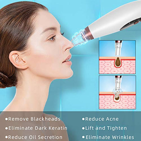 residentD Women Blackhead Remover Vacuum, Electric Blackhead Remover Pore Vacuum Cleaner Blackhead Extractor Tool Device Beauty Device (White)
